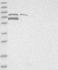 NBP1-82294 - TARS2 / TARSL1