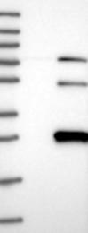 NBP1-88306 - TASP1