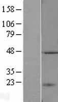 NBL1-16714 - TASP1 Lysate