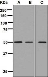 NBP1-96046 - TAT (Tyrosine aminotransferase)