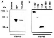 NB500-700 - TBP (TATA-box-binding protein)