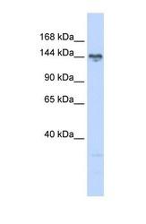 NBP1-54654 - TBC1D1