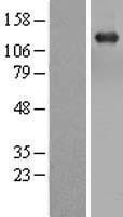 NBL1-16719 - TBC1D1 Lysate