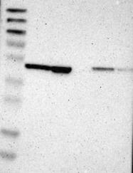 NBP1-89294 - TBC1D10A