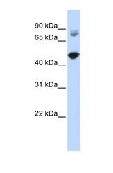NBP1-55489 - TBC1D16