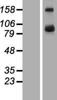 NBL1-16724 - TBC1D16 Lysate