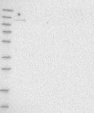 NBP1-87335 - TBC1D2