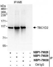 NBP1-79030 - TBC1D2