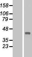 NBL1-16727 - TBC1D21 Lysate