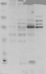 NBP1-86811 - TBC1D22A