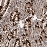 NBP1-86752 - TBC1D22B