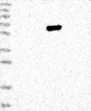 NBP1-86751 - TBC1D22B