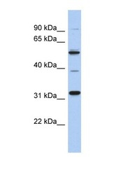 NBP1-57658 - TBC1D26