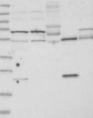 NBP1-84231 - TBC1D7