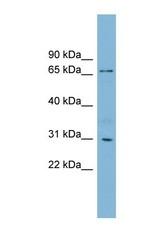 NBP1-55394 - TBCCD1