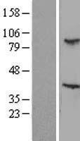 NBL1-16740 - TBL3 Lysate
