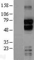 NBL1-16743 - TBR1 Lysate
