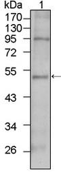 NBP1-47450 - TBX5