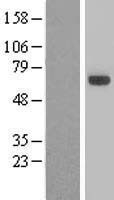 NBL1-16750 - TBX5 Lysate