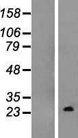 NBL1-15359 - TC10 Lysate