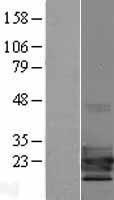 NBL1-16772 - TCF21 Lysate