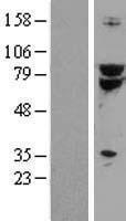 NBL1-16774 - TCF3 / E2A Lysate