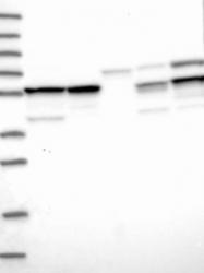 NBP1-92484 - Transcobalamin-1 (TCN1)