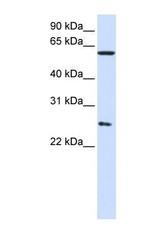 NBP1-58218 - CCT7 / TCP1 eta