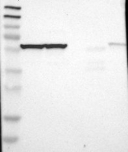 NBP1-88144 - CCT7 / TCP1 eta
