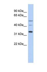 NBP1-56519 - TCP11