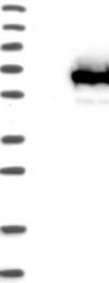 NBP1-83749 - TCP11L1