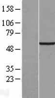 NBL1-16791 - TCTE1 Lysate