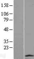NBL1-16792 - TCTEX1D2 Lysate