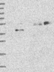 NBP1-83623 - Tectonic-1