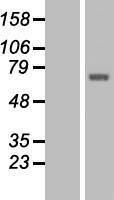 NBL1-16793 - TCTN1 Lysate