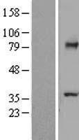 NBL1-16795 - TCTN2 Lysate