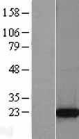 NBL1-17234 - TCTP Lysate