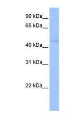 NBP1-53183 - Tektin-2 (TEKT2)