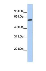 NBP1-57589 - Tektin-4 (TEKT4)