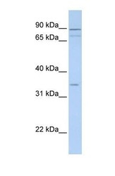 NBP1-70722 - Tenomodulin (TNMD)