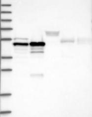 NBP1-89063 - AP-2 beta / TFAP2B