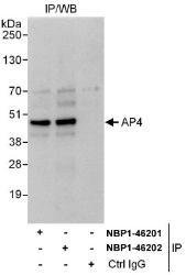 NBP1-46201 - TFAP4