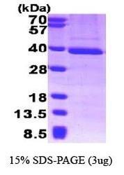 NBP1-30313 - GTF2B
