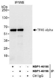 NBP1-46195 - GTF2E1 / TF2E1