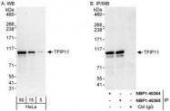NBP1-40364 - TFIP11