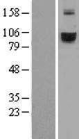 NBL1-16849 - TFR2 Lysate