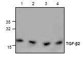 NBP1-45892 - TGF-beta-2 (TGFB2)