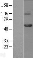 NBL1-16856 - TGF beta Receptor I Lysate