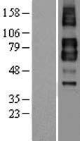 NBL1-16857 - TGF beta Receptor II Lysate