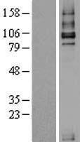 NBL1-16858 - TGF beta Receptor III Lysate